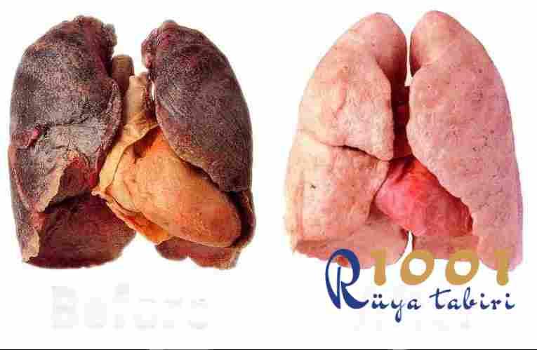 rüyada akciğer görmek-rüyada akciğer kanseri olduğunu görmek-Rüyada Ciğer Yemek